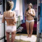 anoressia-bulimia